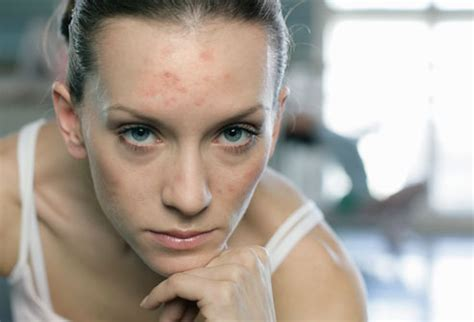 acne in women picture 2
