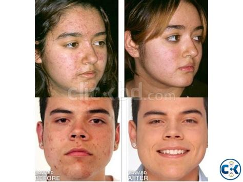 acne treatment in bangladesh picture 10