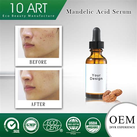 will arginine cause acne picture 6