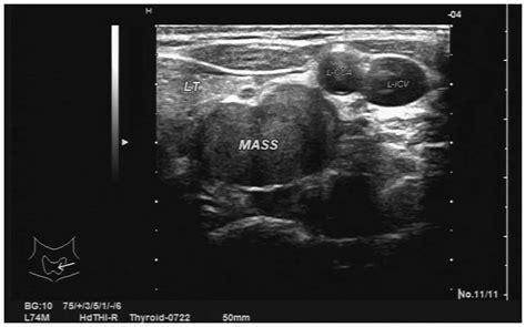 bilateral thyroid goiter picture 10