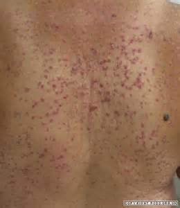 hctz leg rash causes picture 13