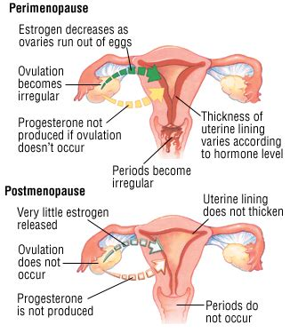 cramping and light bleeding after menopause picture 2