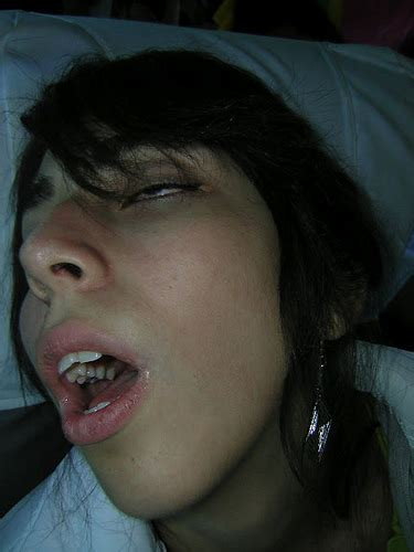 can you actualy sleep with your eyes open picture 10