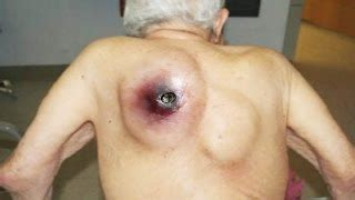 acne cyst picture 9