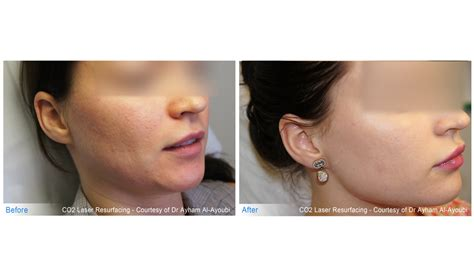 acne after hysterectomy picture 15
