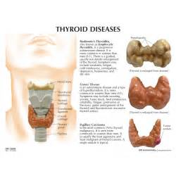 thyroid dysfunction picture 6
