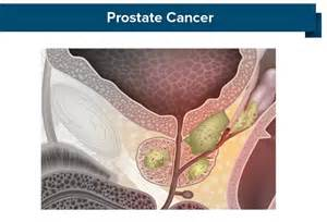Prostate canceer picture 5