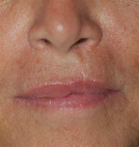 lip suspension no scar ny picture 3