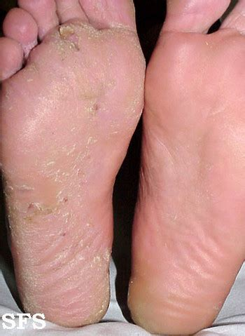 yeast infection itchy legs picture 1