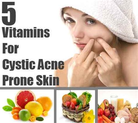 best vitamin and minerals for cyst picture 3
