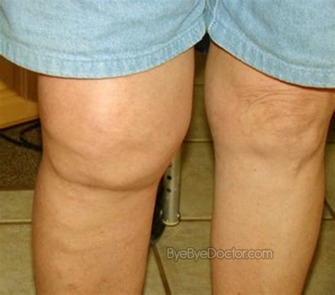 cures for bladder infection picture 15