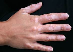 skin pigment disorders picture 17