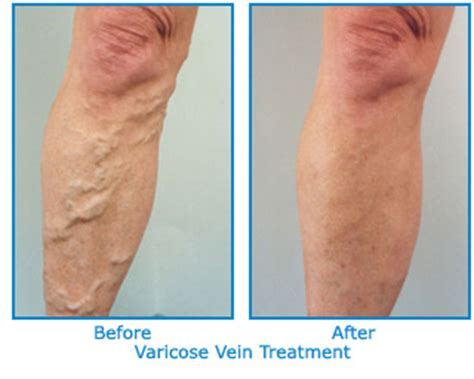 is gabon cure for varicouse veins picture 11