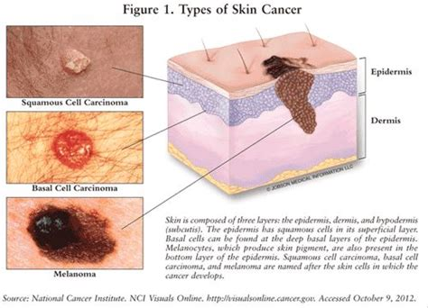 basal cell skin c picture 14