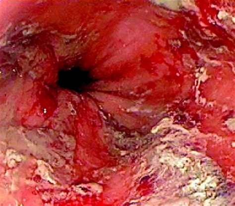 treatment for fungus in gastrointestinal picture 7