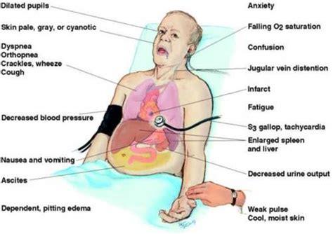 congestive heart failure diet picture 5