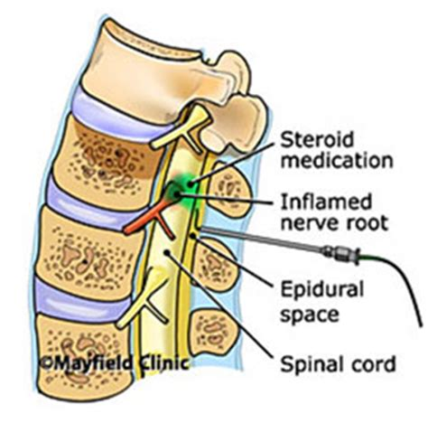 erection problems after epidural steroid block picture 8