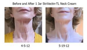 neckplex reviews picture 10