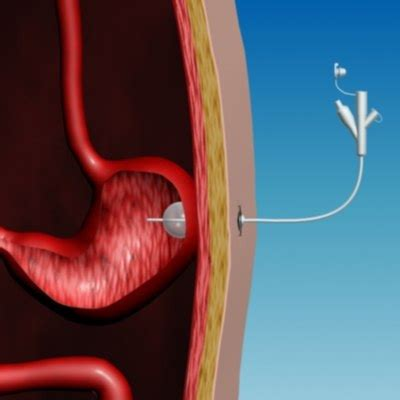 bladder stone patients cystolithotripsy percutaneous picture 5
