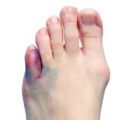 probable fracture of 5th toe joint picture 5