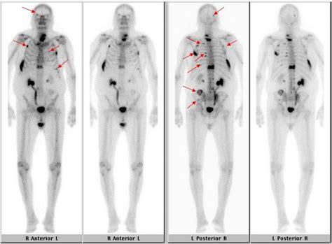 nuclear medicine prostate cancer picture 3