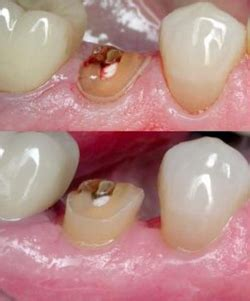 gum grafting picture 5