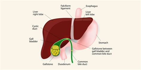 symptoms diseased gall bladder picture 3