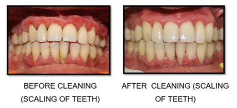 benefits of teeth cleaning picture 3
