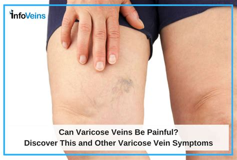 az vein skin rejuvenation picture 10