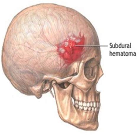 blood clot in head symptoms picture 3