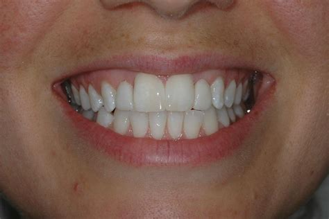 back of thefront teeth picture 6