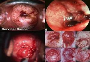 cancer of the body of the uterus during picture 5