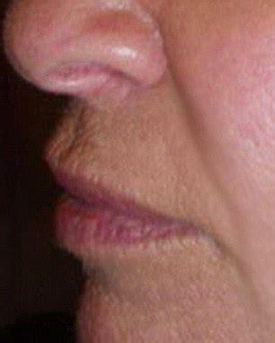 lip plumper on your oris picture 13