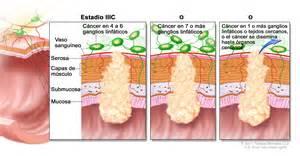 Cancer colon espanol picture 10