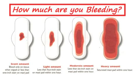 is bright red vaginal bleeding normal picture 6