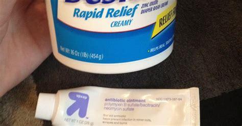 innospore cream for fungal infection nappy rash picture 16