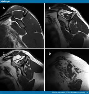 mri and muscle atrophy picture 2