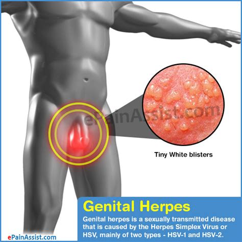 managing gential herpes picture 2