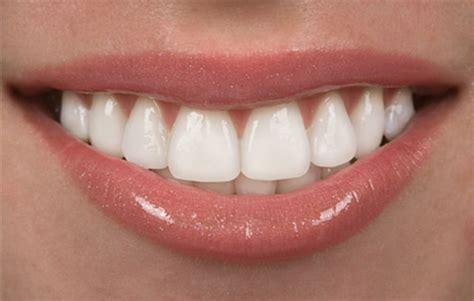 cost of teeth veneers picture 6