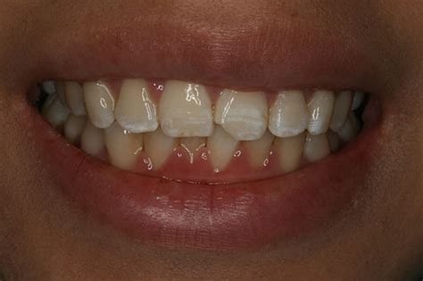 fix teeth picture 9
