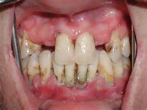 disease picture 3
