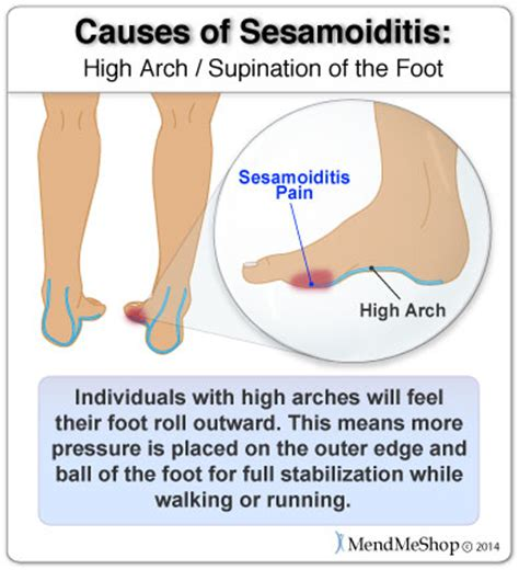 joint ball foot pain picture 3