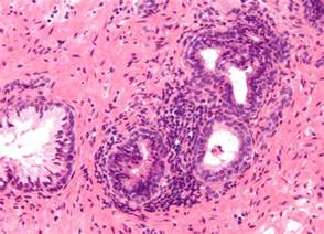 Prostate disorder inflamation picture 14