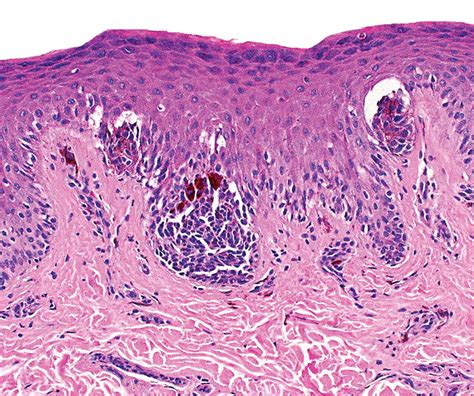 dysplastic cells skin picture 13