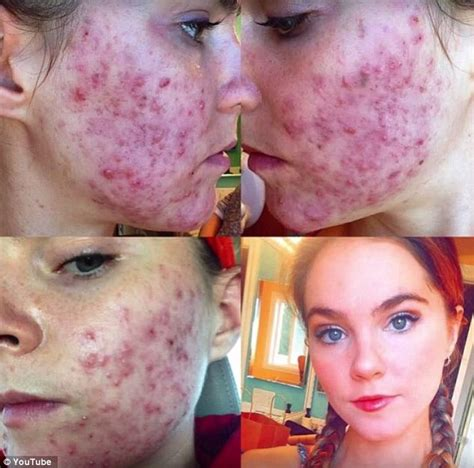 foods that clear up acne picture 9