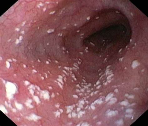 yeast infection picture 14
