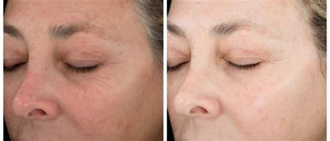 stages of aging skin pics picture 6