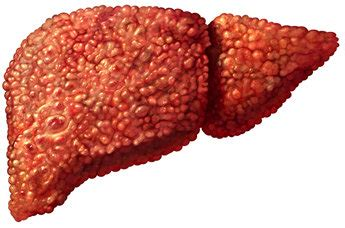 cirrhosis of liver picture 13