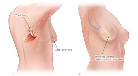 breast augmentation under muscle picture 3