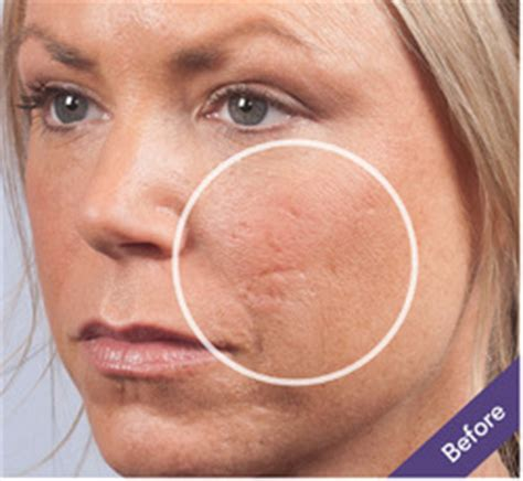 cover acne pit scar skin picture 1